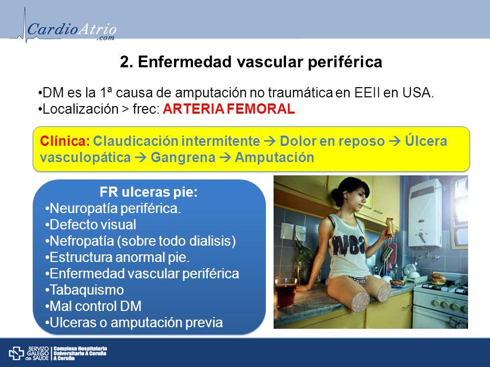 2. Enfermedad vascular periférica DM es la 1ª causa de amputación no traumática en EEII en USA. Localización > frec: ARTERIA FEMORAL Clínica: Claudica