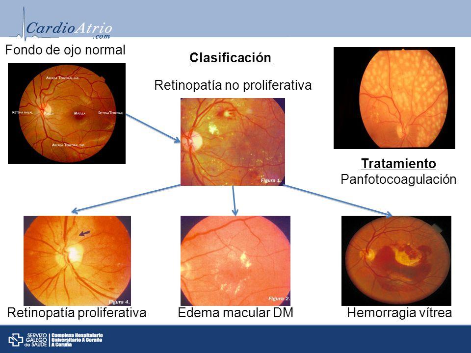 Recomendaciones generales Para reducir el riesgo o ralentizar la progresión de la retinopatía, optimizar control glucémico Para reducir el riesgo o ralentizar la progresión de la retinopatía, optimizar control tensión arterial Screening Adultos y niños>10 años con DM1 deben realizar la primera revisión oftalmológica tras 5 años del diagnóstico.