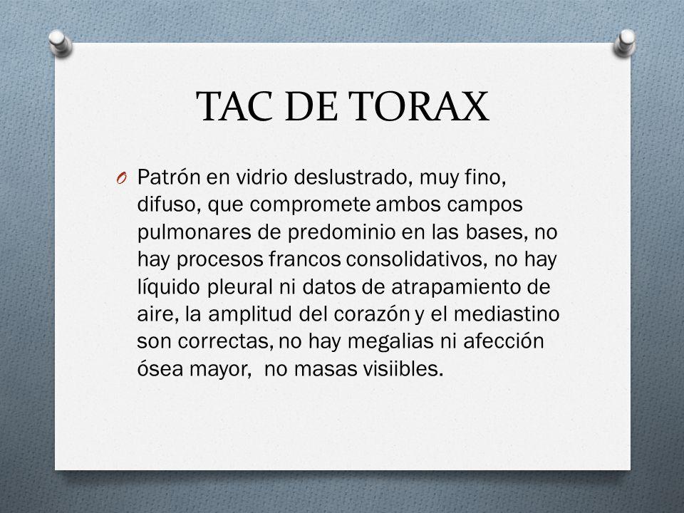 TAC DE TORAX O Patrón en vidrio deslustrado, muy fino, difuso, que compromete ambos campos pulmonares de predominio en las bases, no hay procesos fran