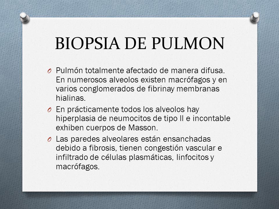 BIOPSIA DE PULMON O Pulmón totalmente afectado de manera difusa. En numerosos alveolos existen macrófagos y en varios conglomerados de fibrinay membra