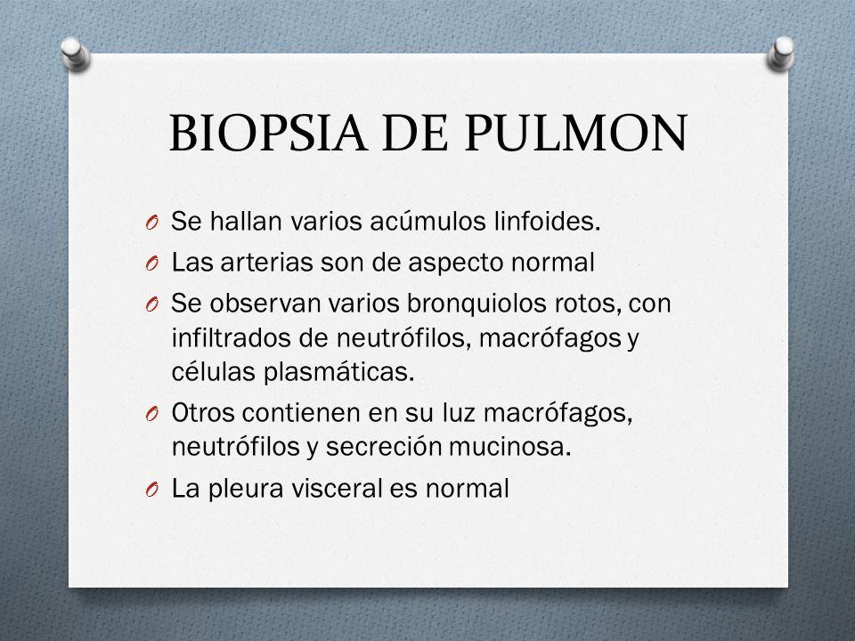 BIOPSIA DE PULMON O Se hallan varios acúmulos linfoides. O Las arterias son de aspecto normal O Se observan varios bronquiolos rotos, con infiltrados