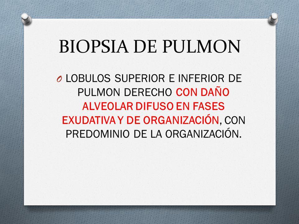 BIOPSIA DE PULMON O LOBULOS SUPERIOR E INFERIOR DE PULMON DERECHO CON DAÑO ALVEOLAR DIFUSO EN FASES EXUDATIVA Y DE ORGANIZACIÓN, CON PREDOMINIO DE LA