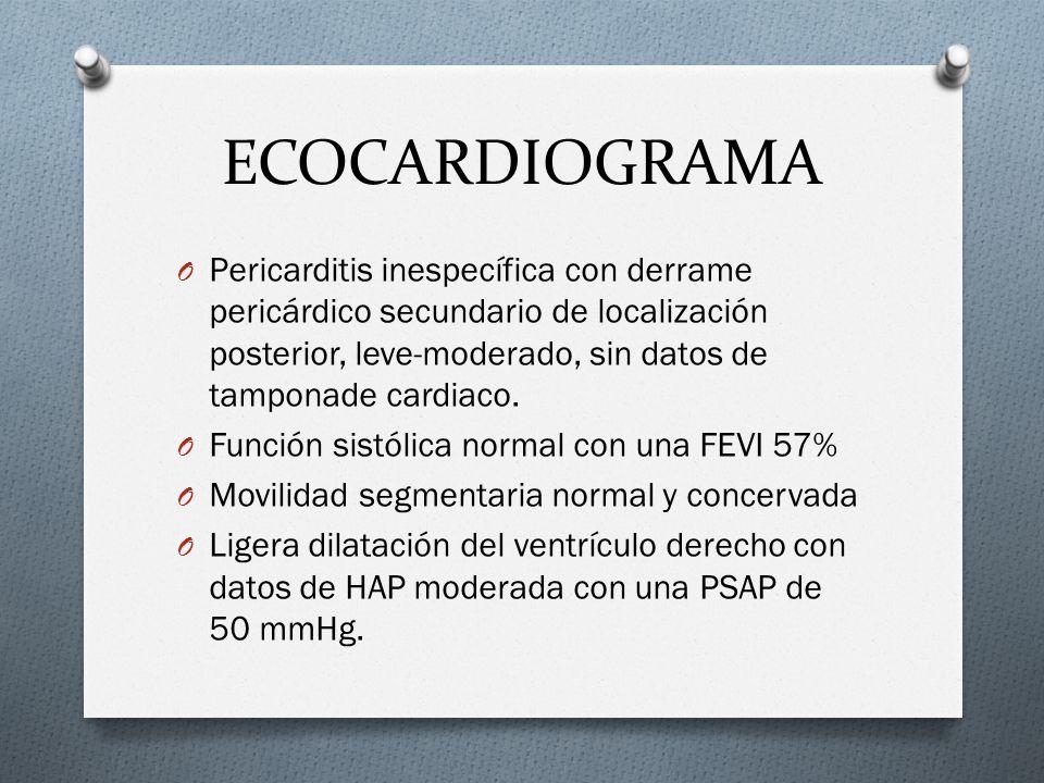 ECOCARDIOGRAMA O Pericarditis inespecífica con derrame pericárdico secundario de localización posterior, leve-moderado, sin datos de tamponade cardiac