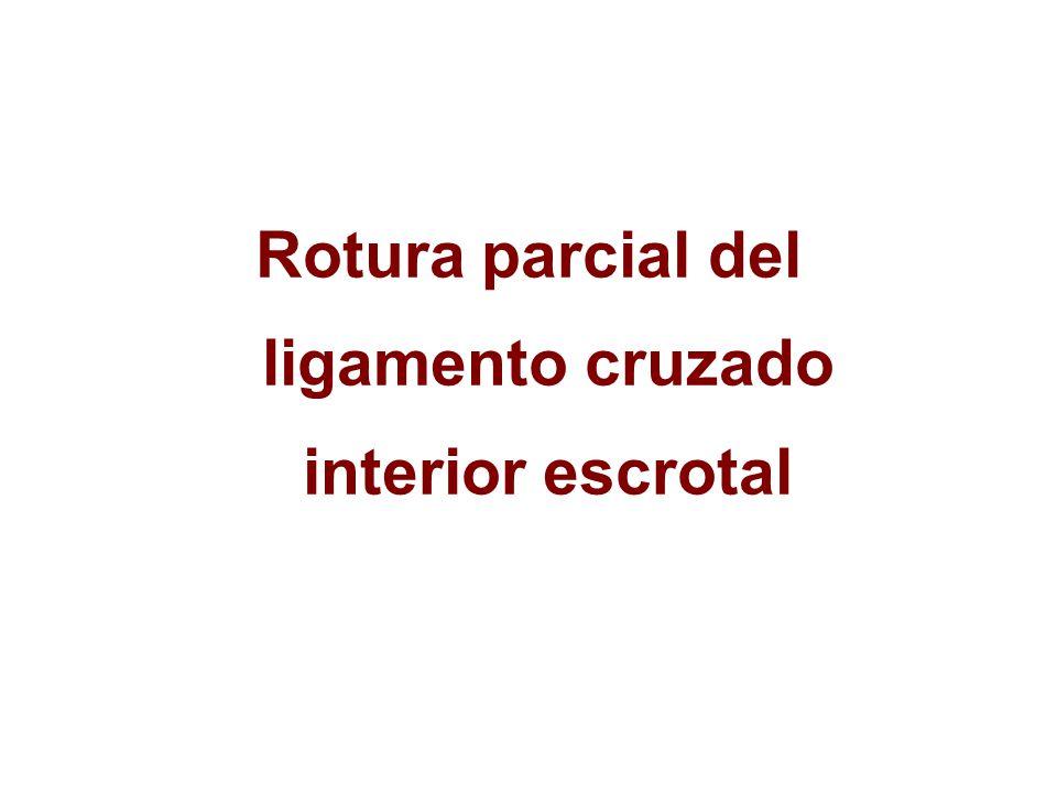 Rotura parcial del ligamento cruzado interior escrotal