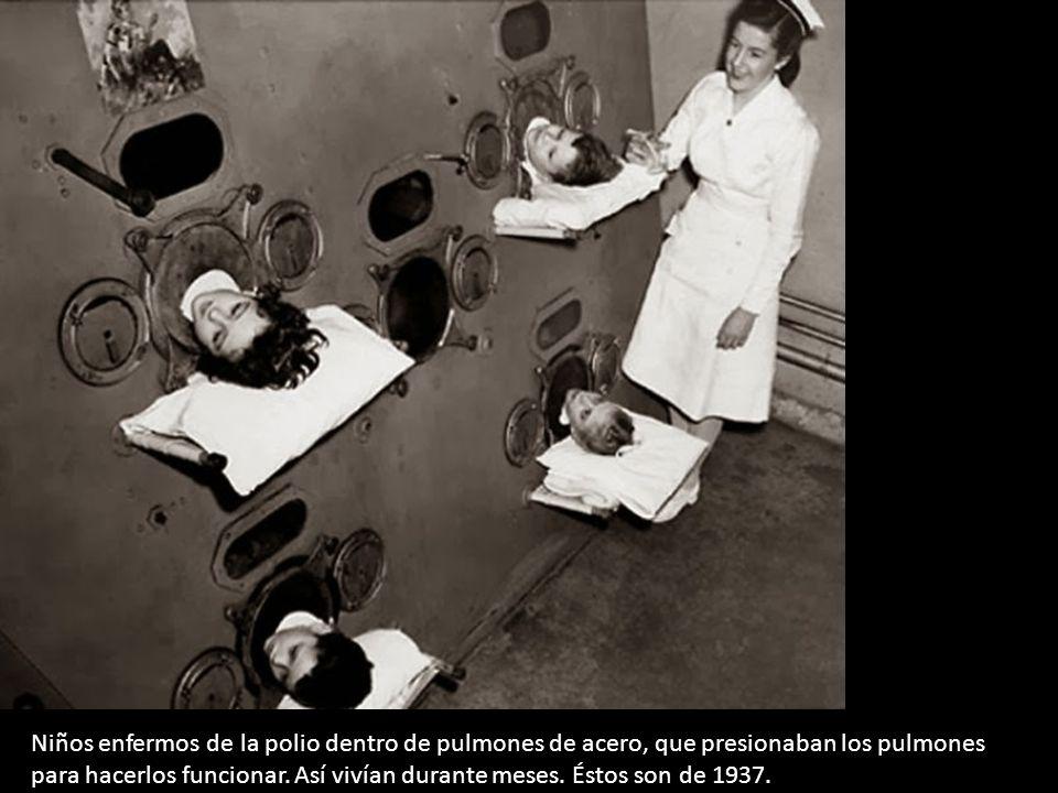 Niños enfermos de la polio dentro de pulmones de acero, que presionaban los pulmones para hacerlos funcionar.