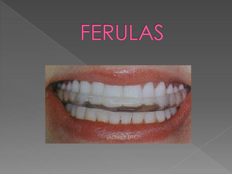 Bruxismo como tratamiento complementario. Movilidad dental.