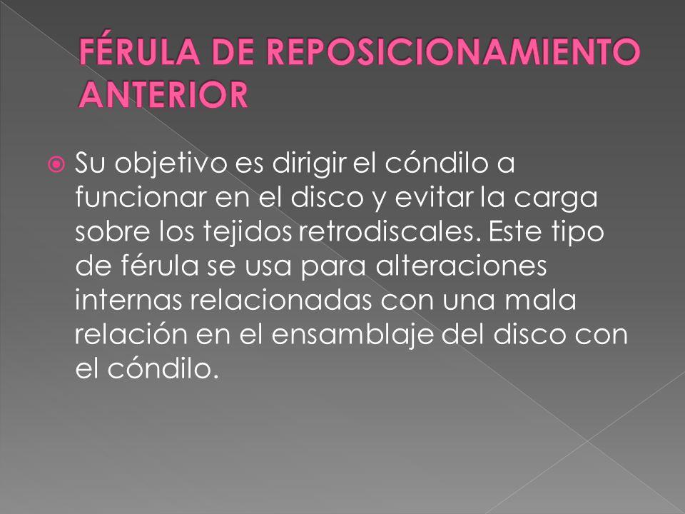 Su objetivo es dirigir el cóndilo a funcionar en el disco y evitar la carga sobre los tejidos retrodiscales.