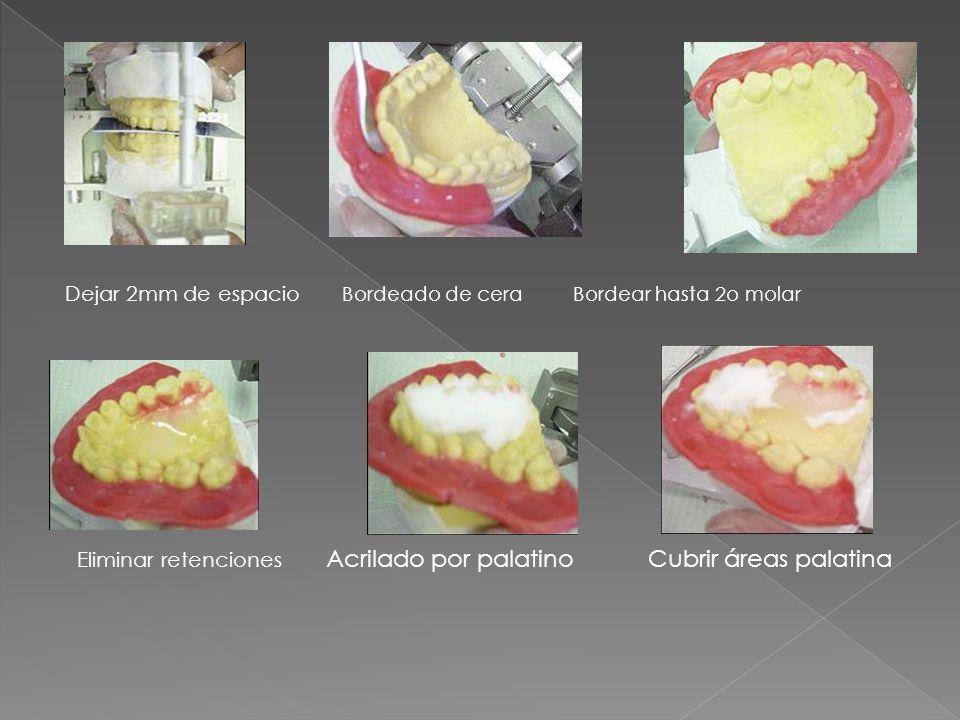 Dejar 2mm de espacio Bordeado de cera Bordear hasta 2o molar Eliminar retenciones Acrilado por palatino Cubrir áreas palatina