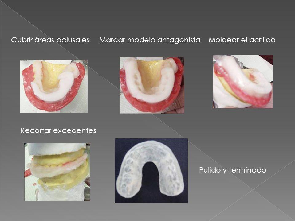 Cubrir áreas oclusalesMarcar modelo antagonistaMoldear el acrílico Recortar excedentes Pulido y terminado