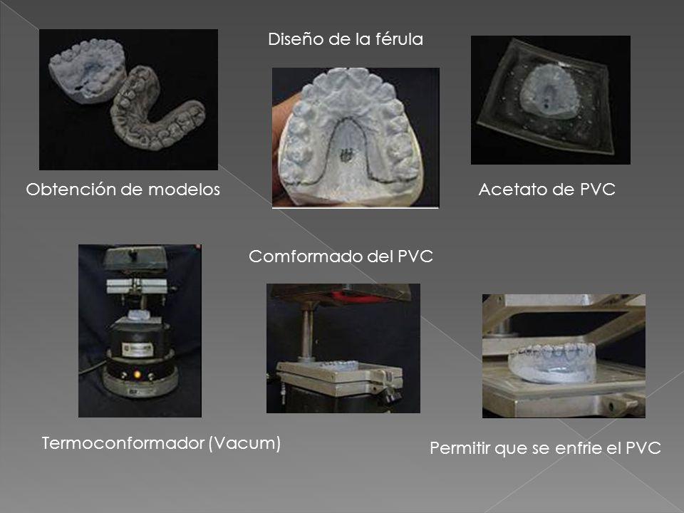 Obtención de modelos Diseño de la férula Acetato de PVC Termoconformador (Vacum) Comformado del PVC Permitir que se enfrie el PVC
