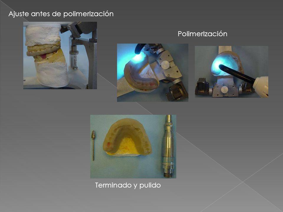 Ajuste antes de polimerización PolimerIzación Terminado y pulido