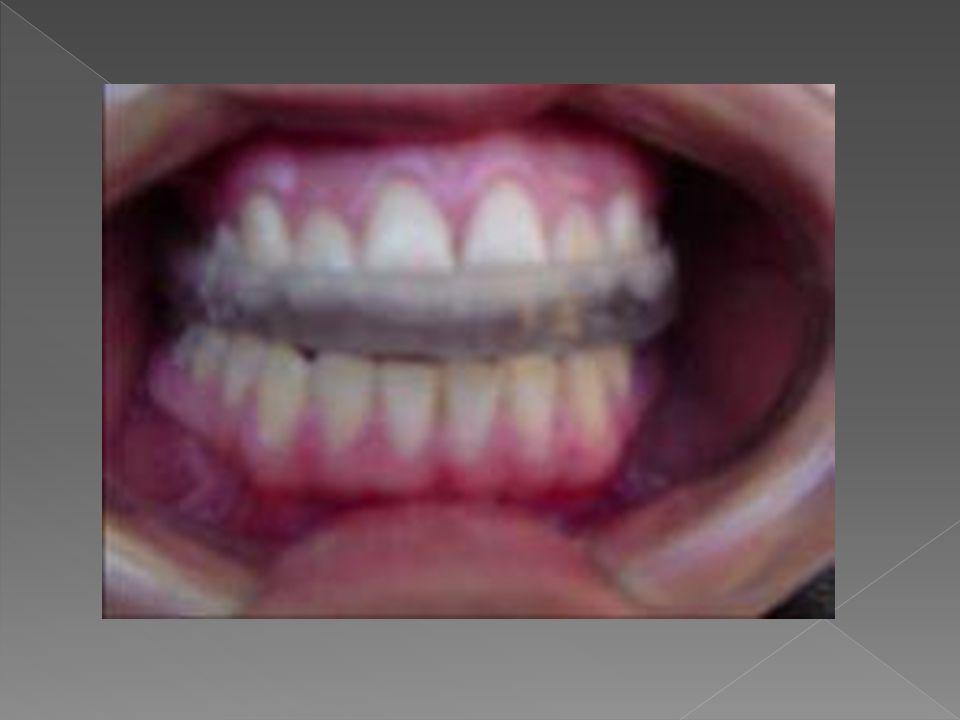 La férula mandibular es fácil de ser ajustada, principalmente a nivel de las guías anteriores, en la posición anterior la férula se apoya en el cíngulo de los insicivos y canino inferiores.