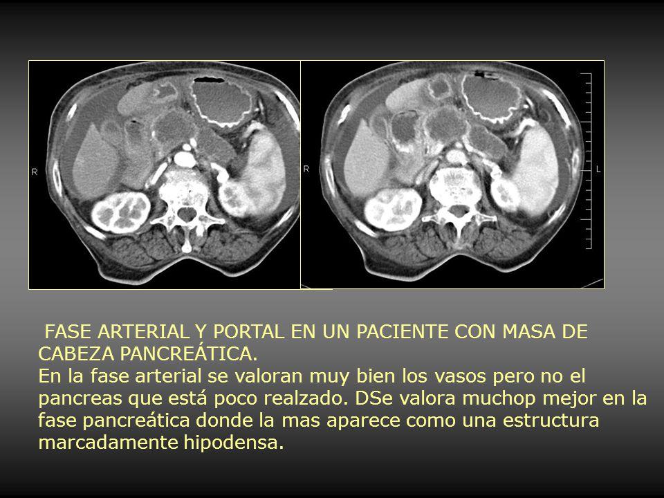 FASE ARTERIAL Y PORTAL EN UN PACIENTE CON MASA DE CABEZA PANCREÁTICA. En la fase arterial se valoran muy bien los vasos pero no el pancreas que está p