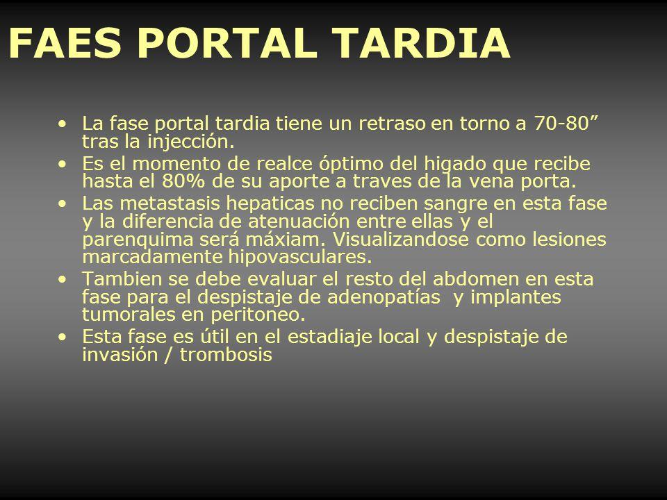 FAES PORTAL TARDIA La fase portal tardia tiene un retraso en torno a 70-80 tras la injección. Es el momento de realce óptimo del higado que recibe has