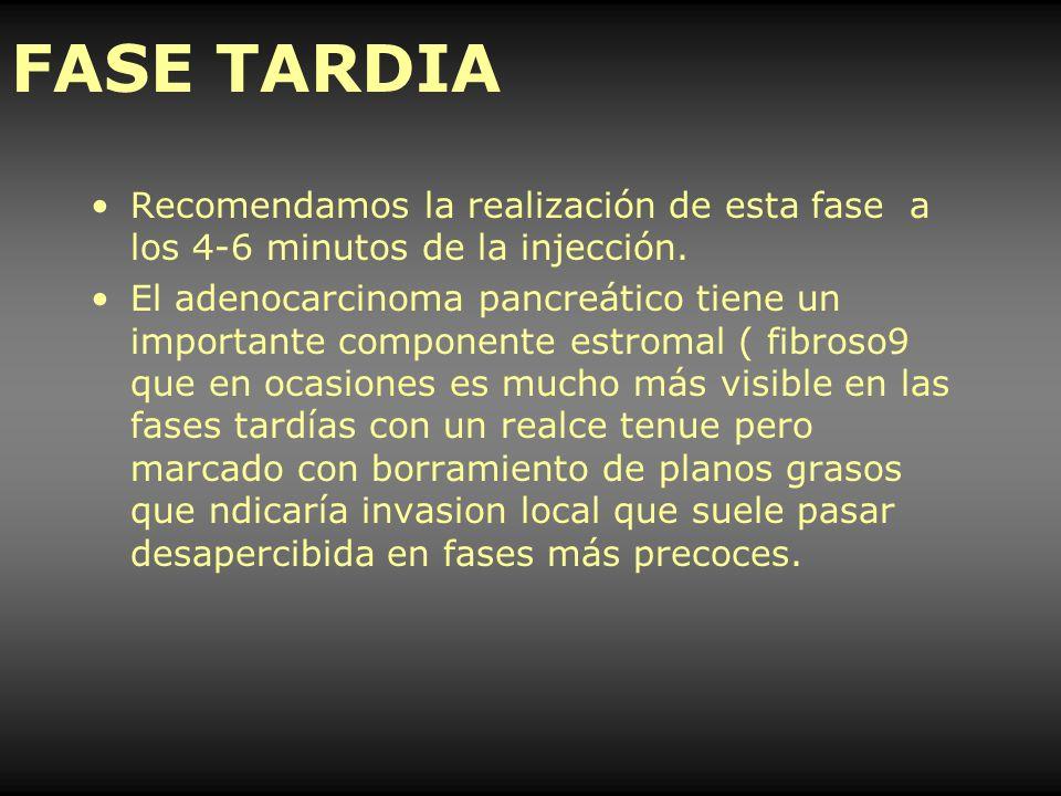 FASE TARDIA Recomendamos la realización de esta fase a los 4-6 minutos de la injección. El adenocarcinoma pancreático tiene un importante componente e