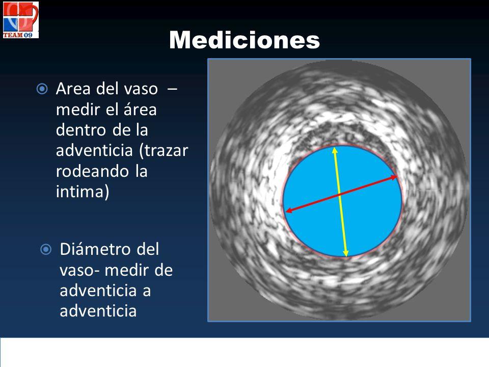 Diámetro del vaso- medir de adventicia a adventicia Mediciones Area del vaso – medir el área dentro de la adventicia (trazar rodeando la intima)