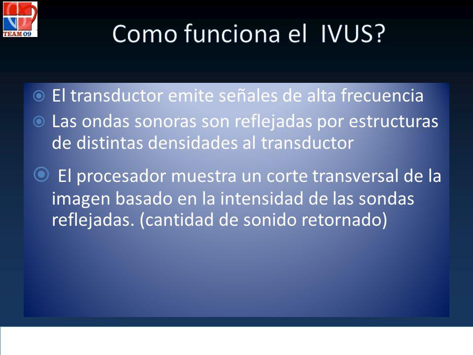 El transductor emite señales de alta frecuencia Las ondas sonoras son reflejadas por estructuras de distintas densidades al transductor El procesador