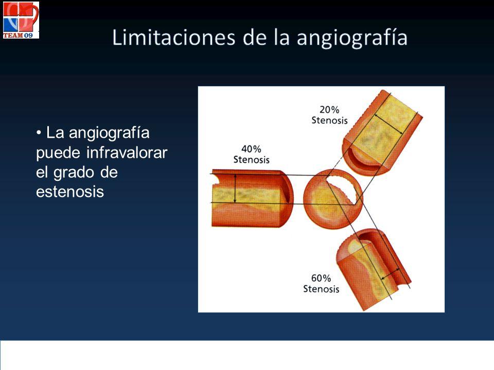 La angiografía puede infravalorar el grado de estenosis