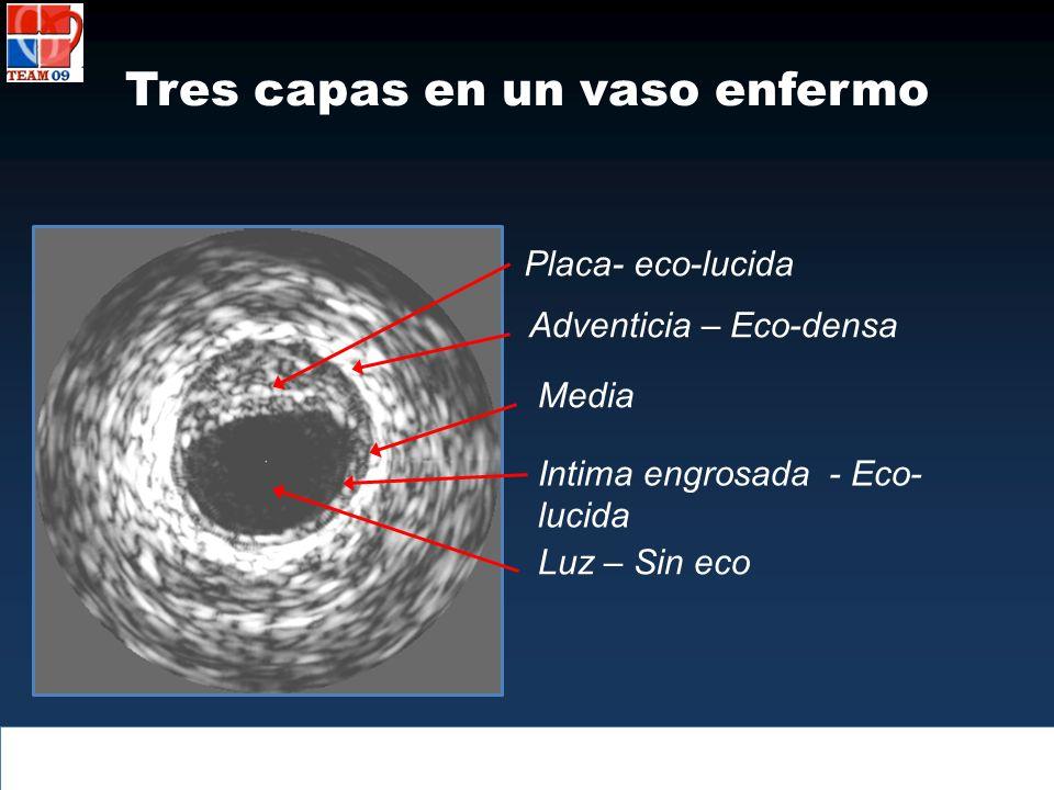 Tres capas en un vaso enfermo Placa- eco-lucida Adventicia – Eco-densa Media Intima engrosada - Eco- lucida Luz – Sin eco