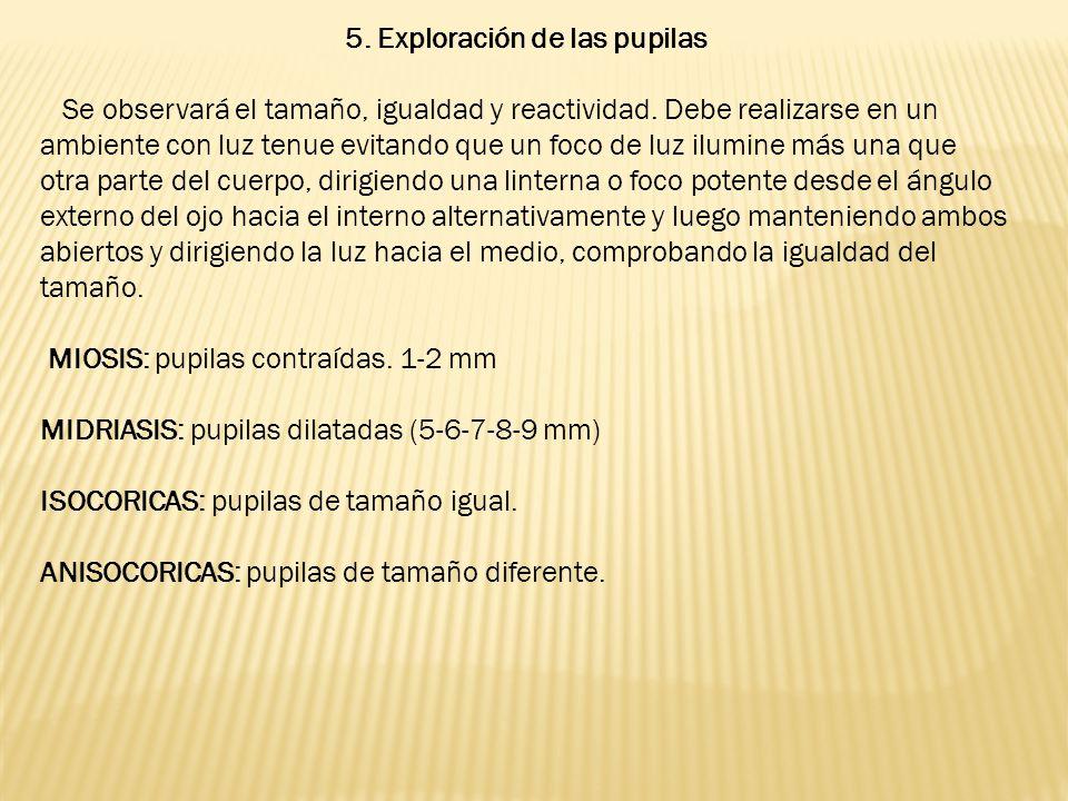 5.Exploración de las pupilas Se observará el tamaño, igualdad y reactividad.