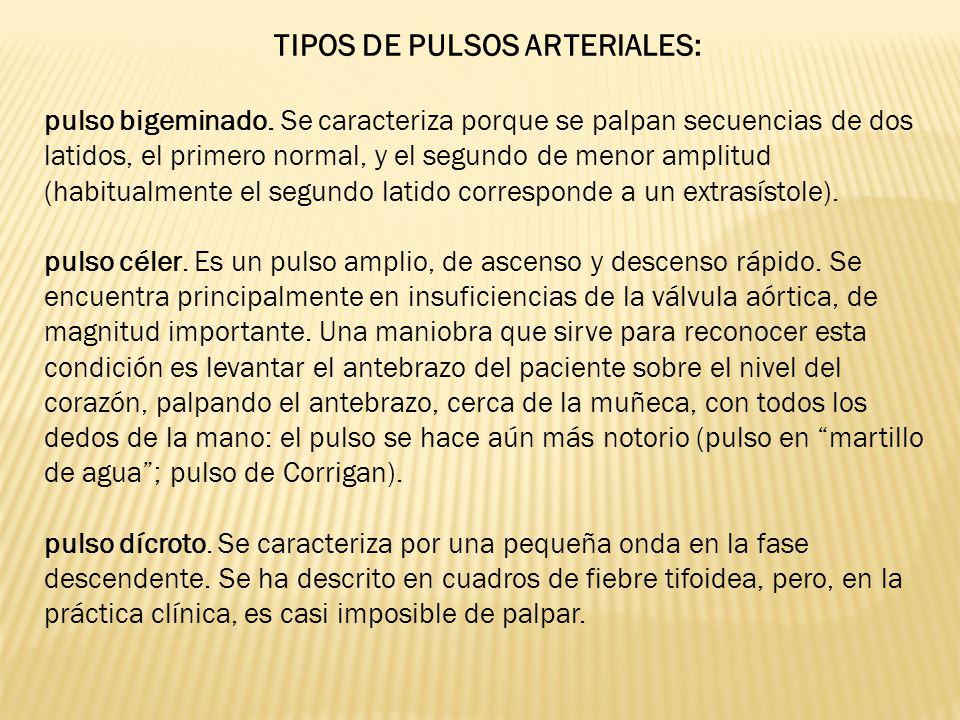 TIPOS DE PULSOS ARTERIALES: pulso bigeminado. Se caracteriza porque se palpan secuencias de dos latidos, el primero normal, y el segundo de menor ampl