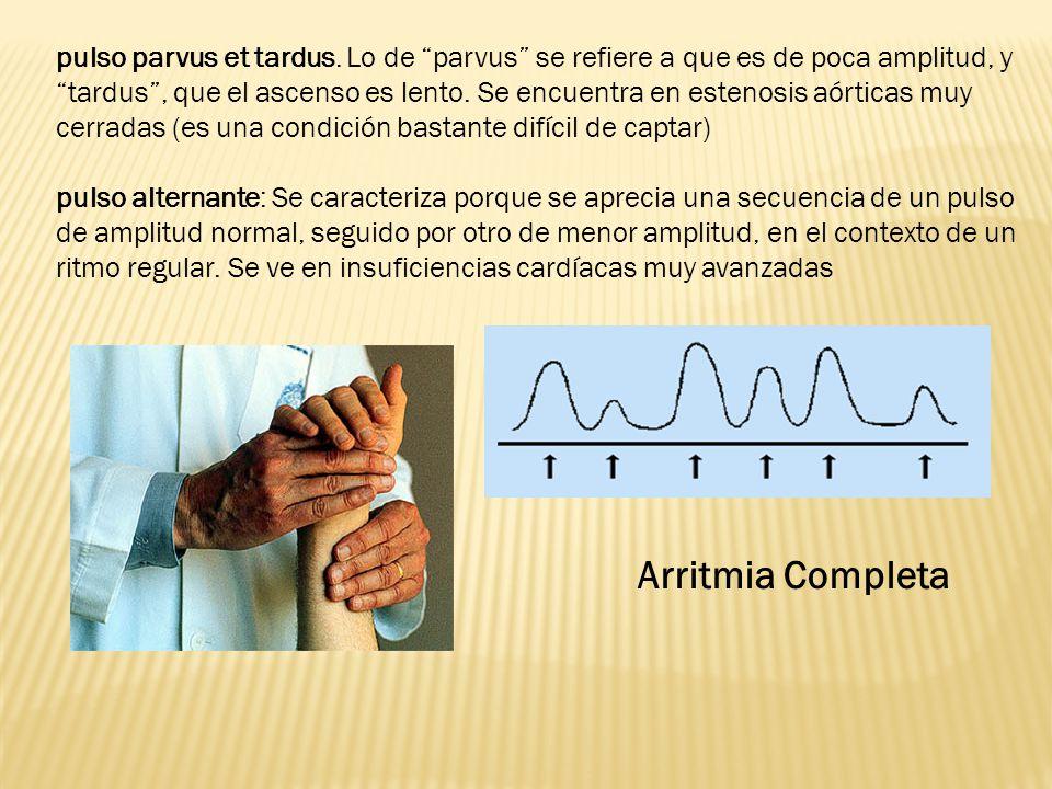 pulso parvus et tardus. Lo de parvus se refiere a que es de poca amplitud, y tardus, que el ascenso es lento. Se encuentra en estenosis aórticas muy c