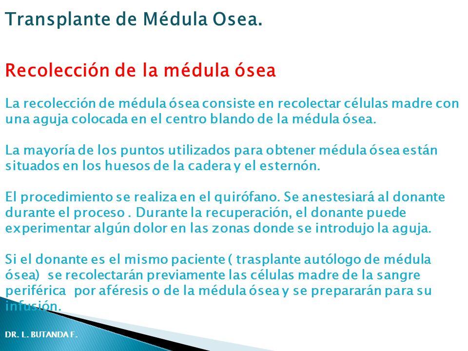 Recolección de la médula ósea La recolección de médula ósea consiste en recolectar células madre con una aguja colocada en el centro blando de la médula ósea.