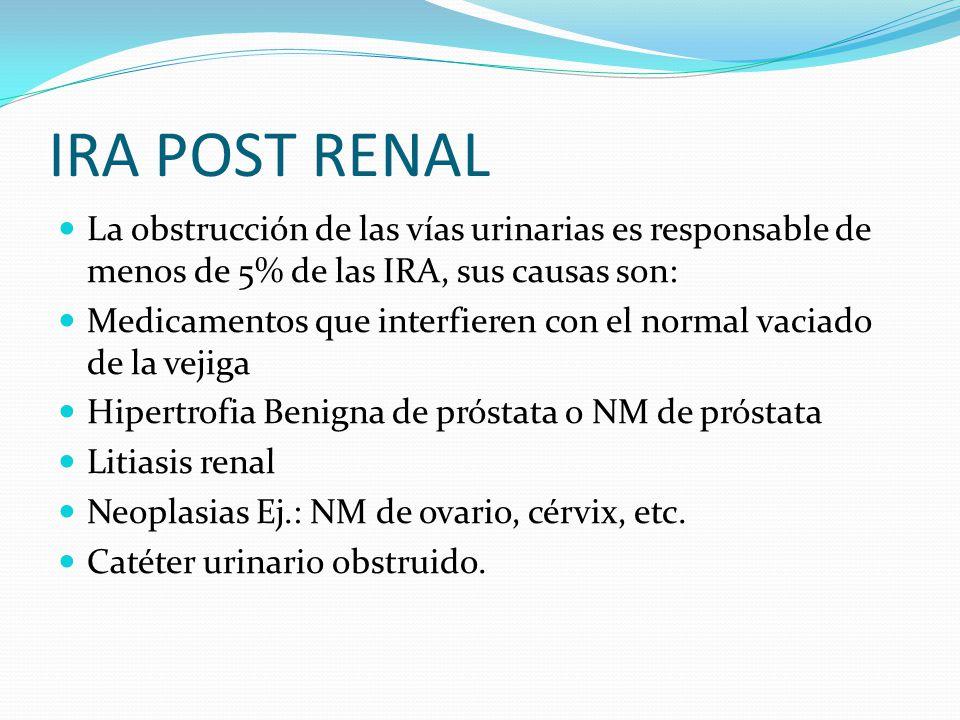 IRA POST RENAL La obstrucción de las vías urinarias es responsable de menos de 5% de las IRA, sus causas son: Medicamentos que interfieren con el norm