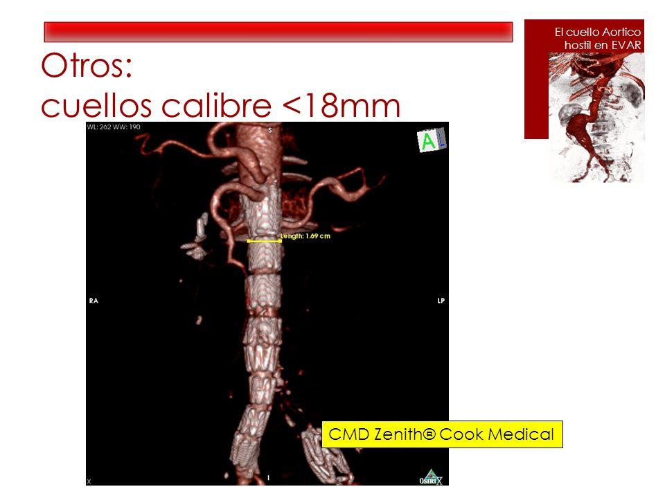 Otros: cuellos calibre <18mm CMD Zenith® Cook Medical El cuello Aortico hostil en EVAR