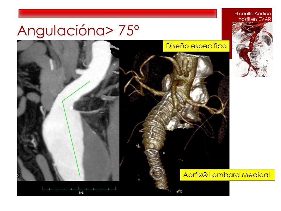 Angulaciónα> 75º Aorfix® Lombard Medical Diseño específico El cuello Aortico hostil en EVAR
