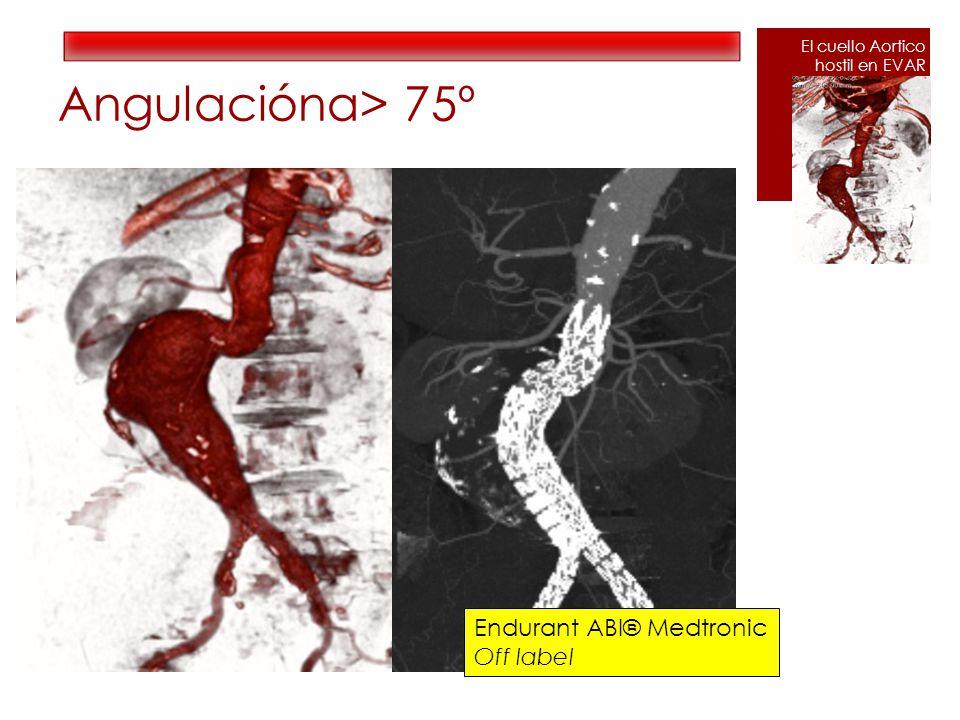 Angulaciónα> 75º Endurant ABI® Medtronic Off label El cuello Aortico hostil en EVAR
