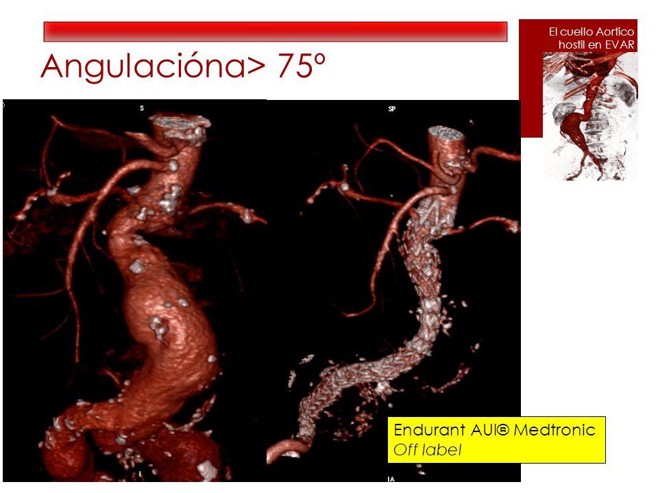 Angulaciónα> 75º Endurant AUI® Medtronic Off label El cuello Aortico hostil en EVAR