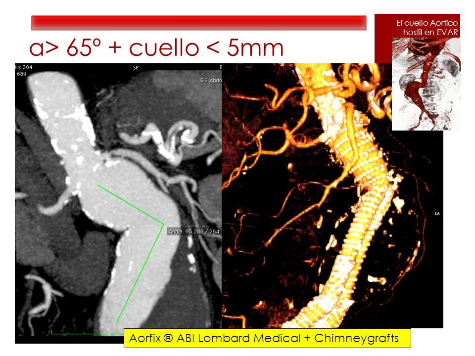 α> 65º + cuello < 5mm Aorfix ® ABI Lombard Medical + Chimneygrafts El cuello Aortico hostil en EVAR