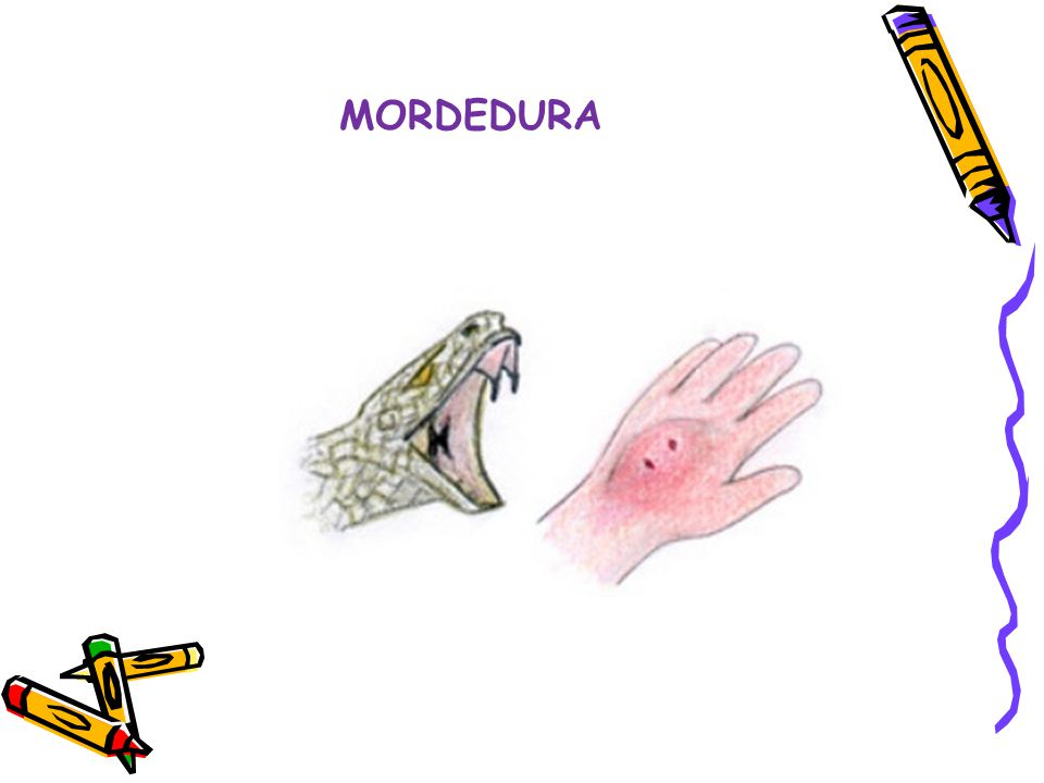 MORDEDURA