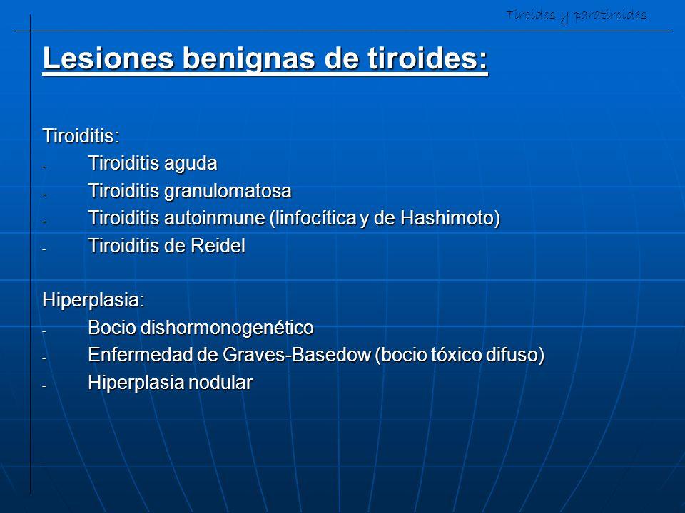 Tiroides y paratiroides Lesiones benignas de tiroides: Tiroiditis: - Tiroiditis aguda - Tiroiditis granulomatosa - Tiroiditis autoinmune (linfocítica