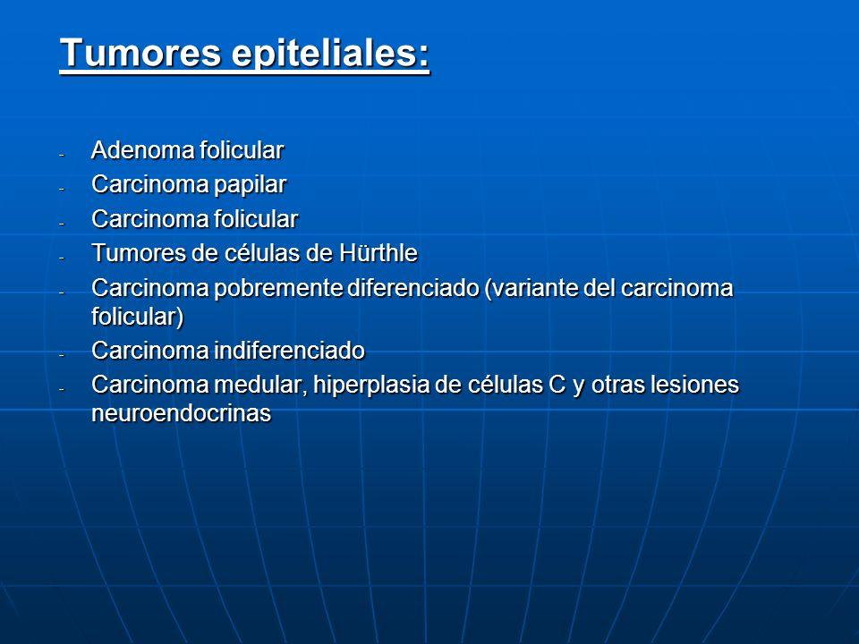Tumores epiteliales: - Adenoma folicular - Carcinoma papilar - Carcinoma folicular - Tumores de células de Hürthle - Carcinoma pobremente diferenciado
