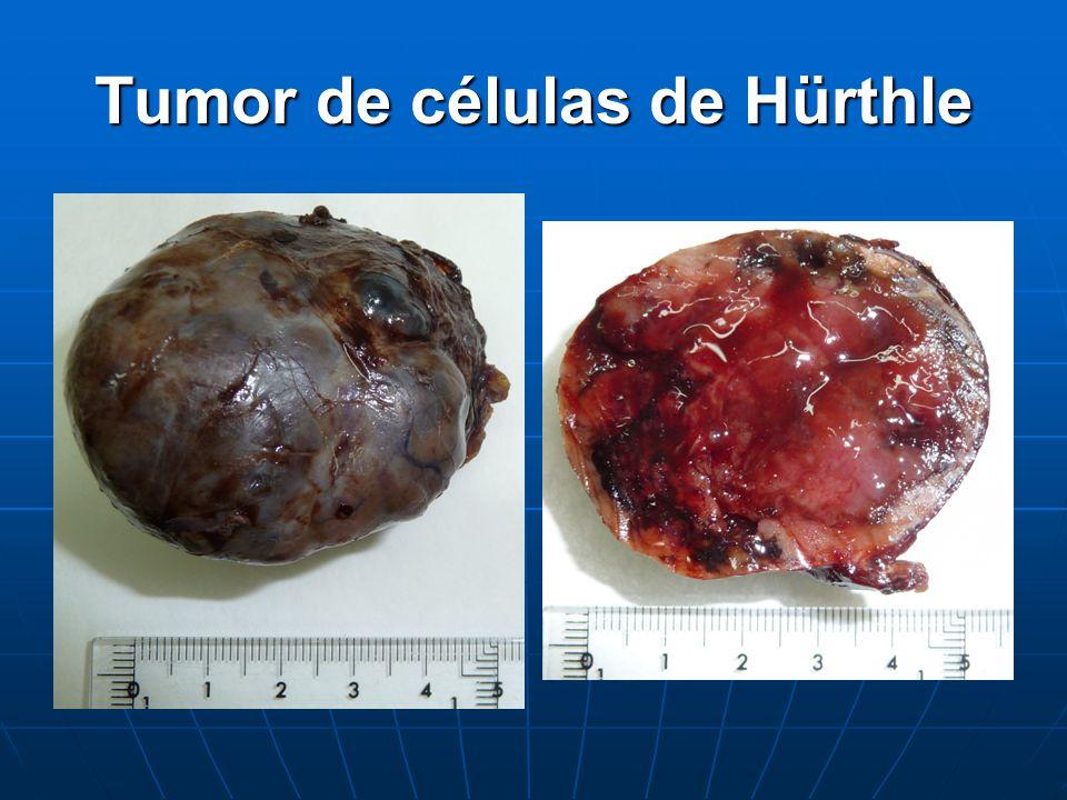 Tumor de células de Hürthle