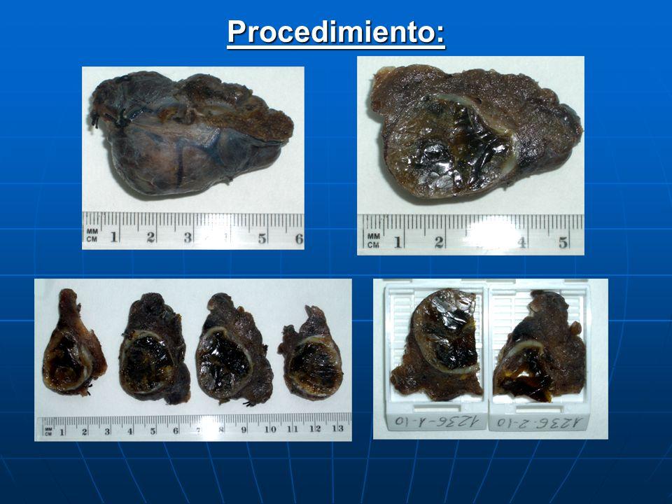 Tiroides y paratiroidesDescripción: 1.Tipo de pieza: lobectomía, istmectomía, tiroidectomía subtotal, tiroidectomía total.