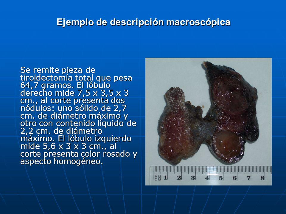 Ejemplo de descripción macroscópica Se remite pieza de tiroidectomía total que pesa 64,7 gramos. El lóbulo derecho mide 7,5 x 3,5 x 3 cm., al corte pr