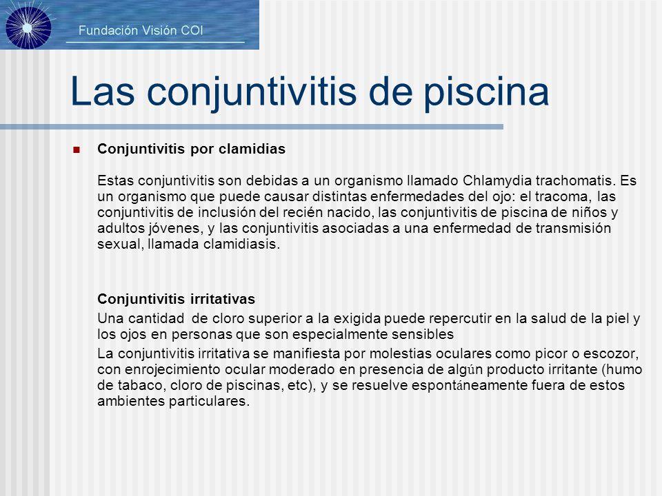 Las conjuntivitis de piscina Conjuntivitis por clamidias Estas conjuntivitis son debidas a un organismo llamado Chlamydia trachomatis. Es un organismo