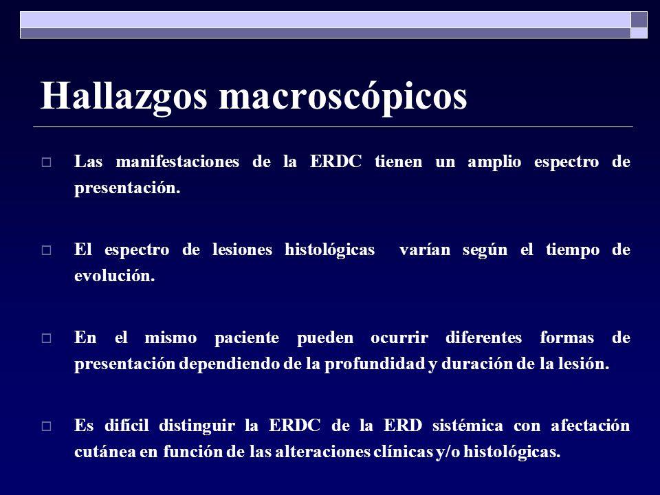 Hallazgos macroscópicos Las manifestaciones de la ERDC tienen un amplio espectro de presentación. El espectro de lesiones histológicas varían según el