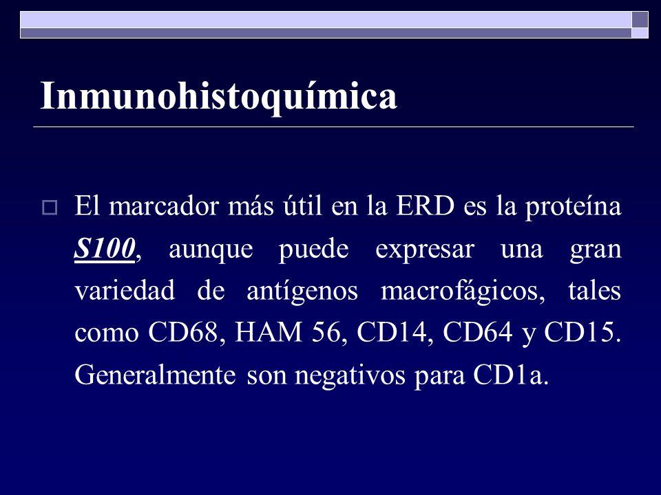Inmunohistoquímica El marcador más útil en la ERD es la proteína S100, aunque puede expresar una gran variedad de antígenos macrofágicos, tales como C