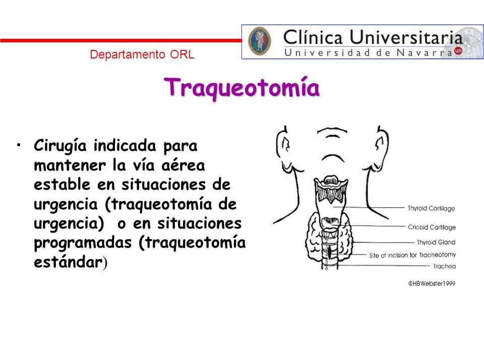Traqueotomía Cirugía indicada para mantener la vía aérea estable en situaciones de urgencia (traqueotomía de urgencia) o en situaciones programadas (t