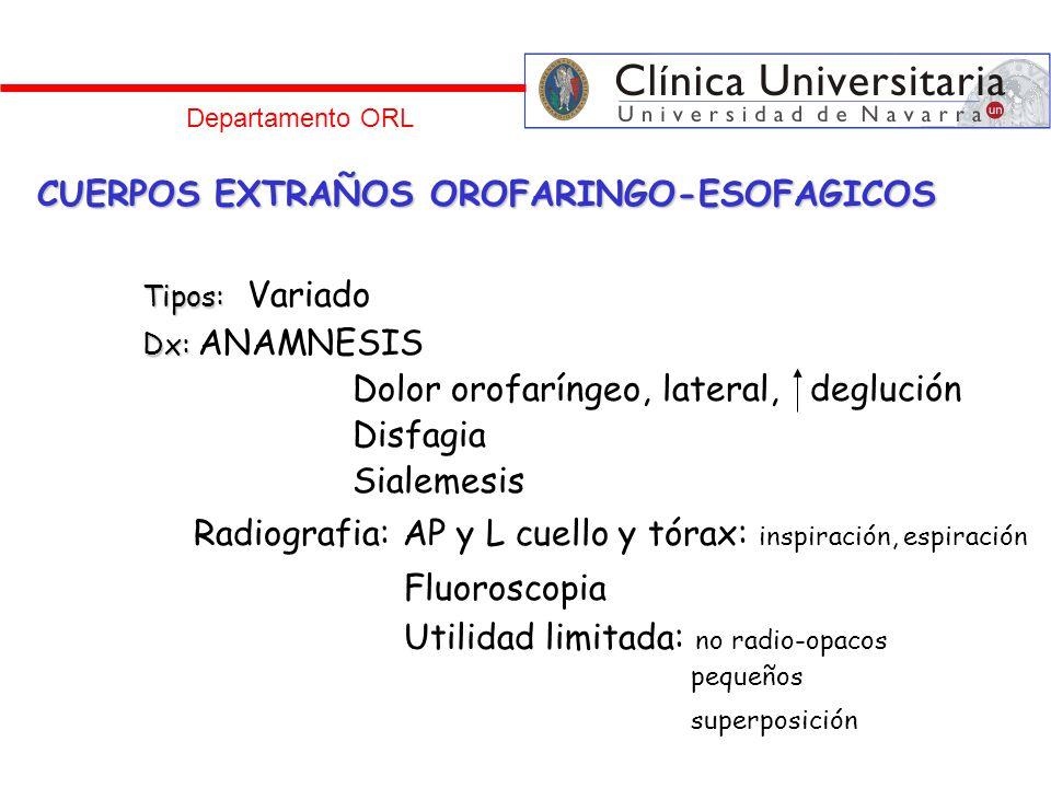 Departamento ORL CUERPOS EXTRAÑOS OROFARINGO-ESOFAGICOS Tipos: Tipos: Variado Dx: Dx: ANAMNESIS Dolor orofaríngeo, lateral, deglución Disfagia Sialeme