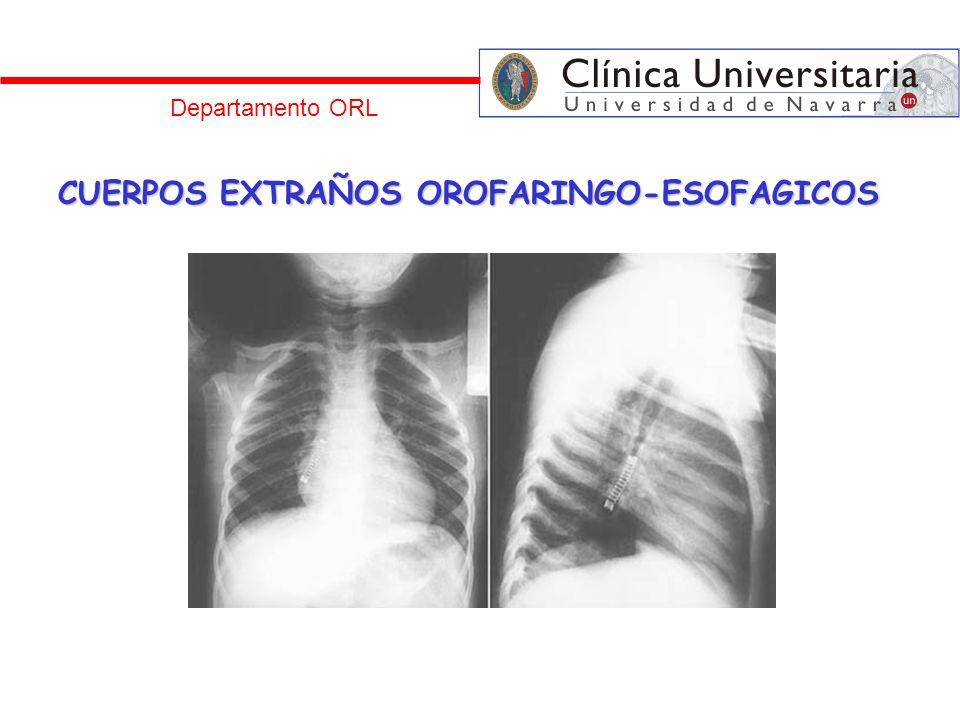 Departamento ORL CUERPOS EXTRAÑOS OROFARINGO-ESOFAGICOS