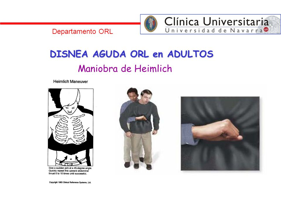 Departamento ORL DISNEA AGUDA ORL en ADULTOS Maniobra de Heimlich