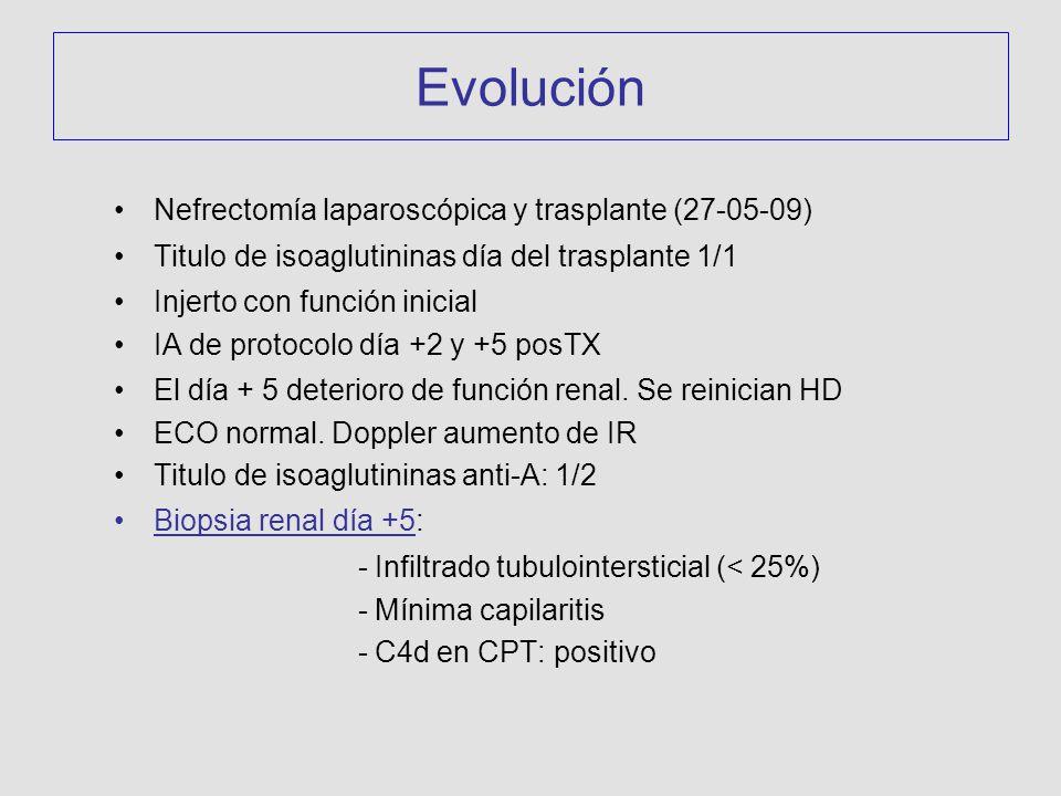 Evolución Nefrectomía laparoscópica y trasplante (27-05-09) Titulo de isoaglutininas día del trasplante 1/1 Injerto con función inicial IA de protocolo día +2 y +5 posTX El día + 5 deterioro de función renal.