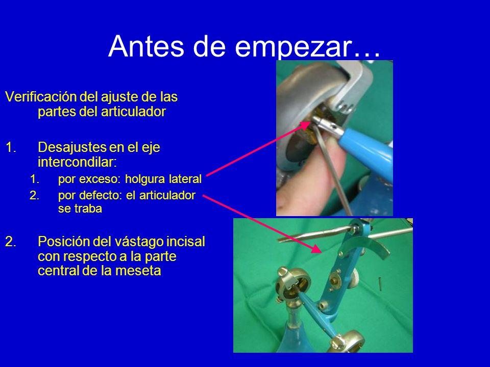 Antes de empezar… Verificación del ajuste de las partes del articulador 1.Desajustes en el eje intercondilar: 1.por exceso: holgura lateral 2.por defecto: el articulador se traba 2.Posición del vástago incisal con respecto a la parte central de la meseta