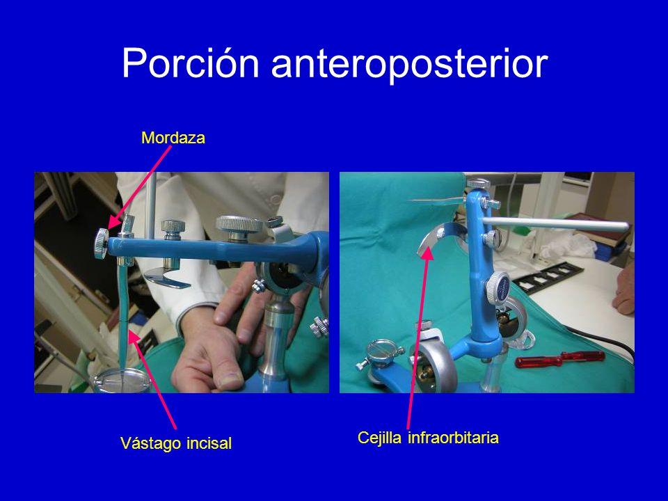Porción anteroposterior Vástago incisal Mordaza Cejilla infraorbitaria