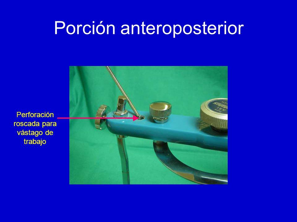 Porción anteroposterior Perforación roscada para vástago de trabajo